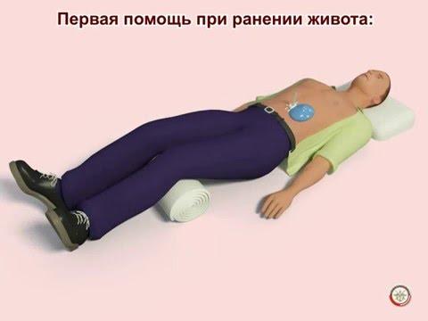 Травмы живота, первая помощь