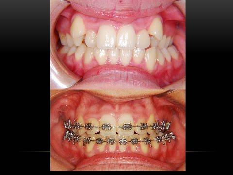 Köpek Dişi ve Ortodontik Tedavisi