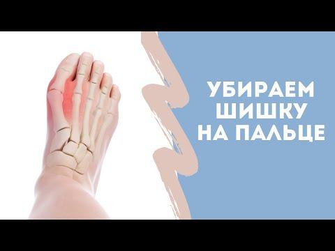 Косточка на пальце стопы. Кажется мы ее теряем. (видео)