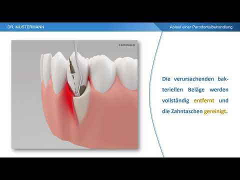 Ablauf der Behandlung - Parodontalbehandlung