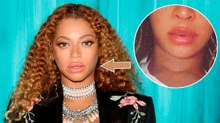 Los rumores que Beyoncé se opero los labios estando embarazada de gemelos no dejaron de inundar a todo Internet, luego que Queen Bey compartiera fotos de ella y su inmensa pancita! Por lo que su representante desmintió los rumores asegurando que Beyonce no ha entrado al quirófano y que todos los cambios presentados son a causa de su embarazo de gemelos!Qué opinan ?Elenco de 13 Reasons Why enloqueció los MTV Movie 2017: https://youtu.be/_3_e7ip7eeQAdele se disfraza de anciana: https://youtu.be/hOYCugzF7PESuscribete http://bit.ly/WanestEntFacebook http://facebook.com/WanestYTTwitter http://twitter.com/WanestYTInstagram http://instagra.com/WanestYTBeyonce se inyectó los labios?