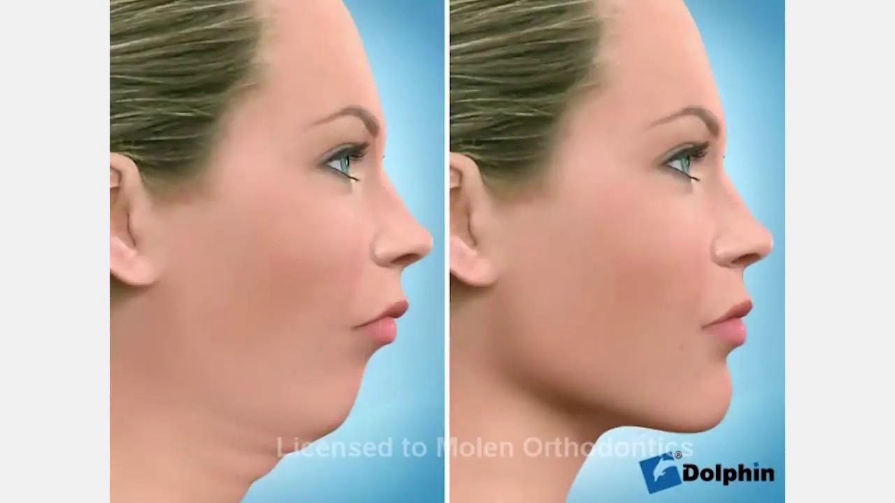Ortognática avanço mandíbula