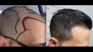 Video 6453 FU's. Hair Transplant by FUE Technique. Temporal points. Injertocapilar.com. 555/2011 MP3, 3GP, MP4, WEBM, AVI, FLV Juli 2018