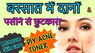JSuper Kaur Toner will help in Clearing Acne, Scars, Pigmentation and Blackheads Magically.This Toner ideal for all Skin types, although it works BEST for Acne & Pimple prone Skin.Check Out my Other Videos :* Glow Serum for Oily & Acne skin : https://youtu.be/jwHE7qsoOuw* DIY Matte Liquid Lasting Lipstick at Home  : https://youtu.be/KOX4Od4eBWY* DIY Natural Homemade Moisturiser : https://youtu.be/1XkVKV1M0KA* How to get DARK HENNA STAINS  : https://youtu.be/yMHmhN_SaOE* Follow me on all social media & be my Friend!  Please do Like,  Subscribe & Share :- *  YouTube : http://www.youtube.com/c/JSuperkaurbeauty*  Facebook : https://www.facebook.com/JSuper.Kaur*  Instagram : https://www.instagram.com/jsuper.kaur*  Twitter : https://twitter.com/JsuperKaur*  Google+ : https://plus.google.com/+JSuperkaur*  Website : www.jsuperkaur.comFor Easy Homemade Delicious Food, Snacks etc  Recipe do Subscribe this channel :Cook with Monika : https://www.youtube.com/channel/UCEXuL6SujEWEfZlSumjrYrwFor Business Enquiries -EMail : jsuperkaur@gmail.comMuch LoveJessikaPS - My channel is dedicated to my much beloved n most missed Father - Mr. Kulwant Singh. He was, is and will always be in my heart to heal it whenever it gets hurt. He's living this life through me.Disclaimer : All products used in my videos, regardless of whether the is sponsored or not, are the products i like using. the information provided on this channel is only for general purposes and should NOT be considered as professional advice. I am not a licensed Professional or a medical practitioner , so always make sure you consult a professional in case of need. I always try to keep my Content updated but i can not guarantee. All opinions expressed here are my own and i am not compensated         by and brand, advertiser , PR Representative or affiliate for the same unless explicitly stated in my videos and / or description box i never tried to push products on any one, I Only recommendations based on my personal experience 