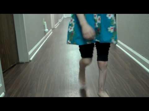 Fibular Deficiency (anteromedial bowing) - Pediatrics ...