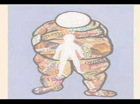 Obesidad provoca insuficiencia de vitamina d