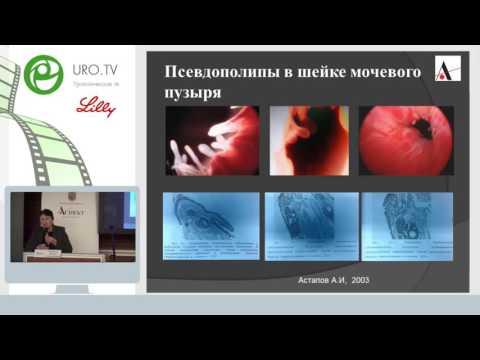 Синякова Л А - Инфекции мочевых путей у женщин, междисциплинарная проблема