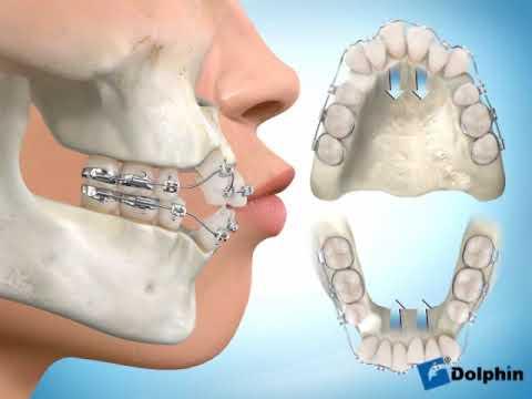 Küçük Azı Diş Çekimli Ortodontik Tedavi