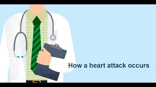 How a heart attack occurs