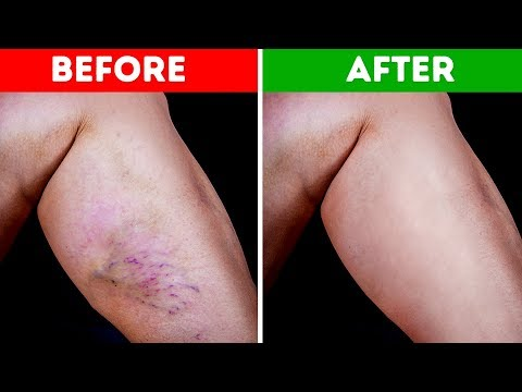 10 Natural Ways to Get Rid of Varicose Veins and Increase Blood Flow