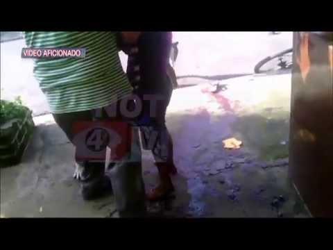 PERROS DE ATAQUE - El ataque se registró en Chalchuapa, departamento de Santa Ana.