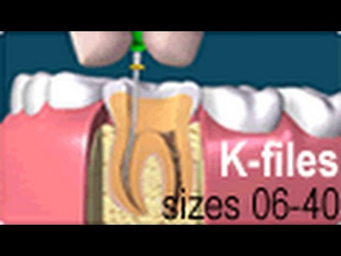 Dental Endo Hand Use Root Canal K Files