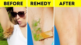 Video SOLVE ALL THESE PAINFUL BEAUTY PROBLEMS ONCE AND FOR ALL MP3, 3GP, MP4, WEBM, AVI, FLV Maret 2019
