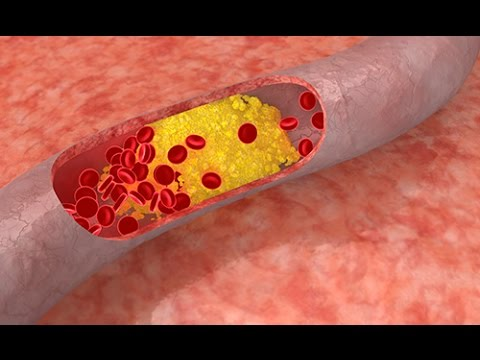 comment guerir la tension arterielle