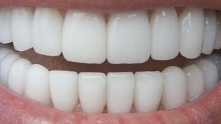 How To Have Natural White Teeth in 3 minutes ( Works 100% ) - YouTube