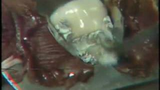 Class V Amalgam Restoration: Cervical Matrix Application