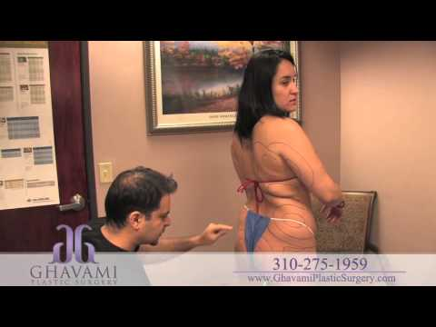 Copy of Brazilian Butt Lift by Fat Transfer in Beverly Hills | Dr. Ghavami