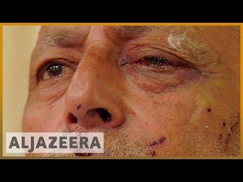 Kashmir: Indian forces  firing pellets at civilians