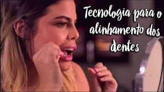 Tecnologia para o alinhamento dos dentes