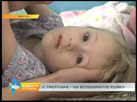 По дороге в детский сад 4-х летняя девочка получила компрессионный перелом позвоночника в Иркутске