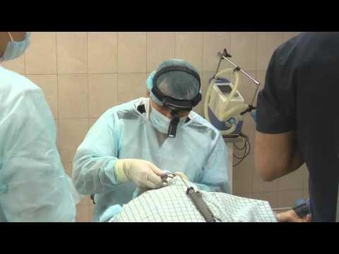 Удаление аденоидов у детей. Операция в Клинике уха, горла и носа