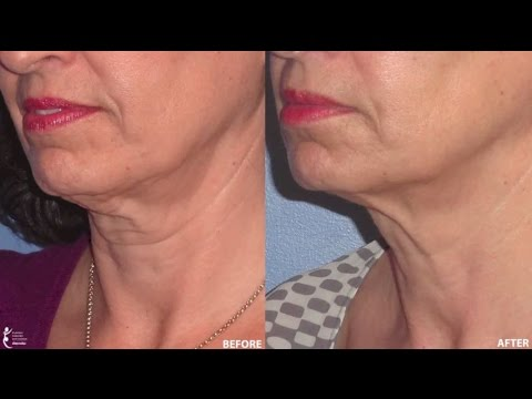 Ultherapy Non-Surgical Face, Neck & Décolletage Lift
