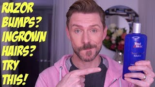 INGROWN HAIRS? SHAVING RASH? TRY THIS! by Wayne Goss