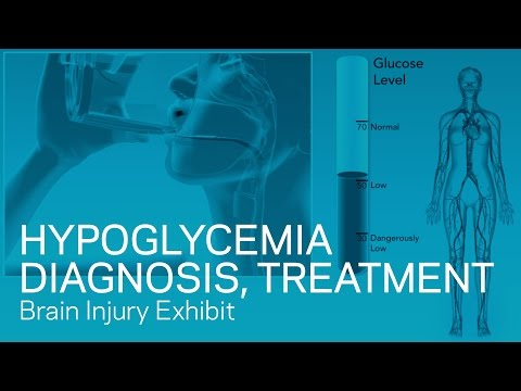 Hypoglycemia Diagnosis and Treatment
