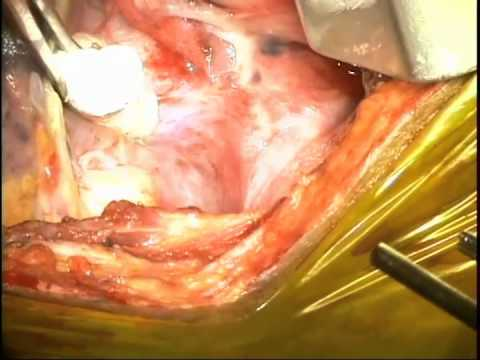 Thoracic Repair of a Chyle leak