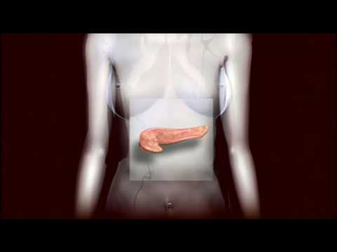 Diabetes - How diabetes occurs and how to treat it. Watch this and more health videos at: http://www.answerstv.com/health.