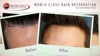 Los Angeles Hair Transplant Clinic Before and After Results