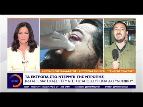 Video - Φίλαθλος καταγγέλλει ότι έχασε το μάτι του από χτύπημα αστυνομικού στο ντέρμπι