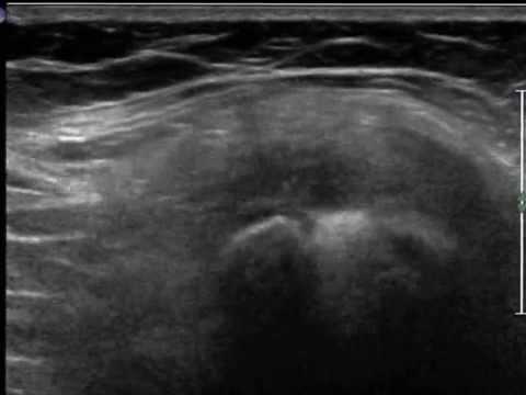 comment soigner kyste synovial genou