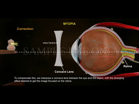 Contact Lenses - Silicone Hydrogel