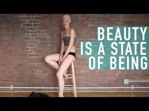 VIDEO! Ea demonstrează că modelling-ul nu este o meserie ușoară! Fără păr și dinți, Melanie este un model CU ADEVĂRAT FRUMOS