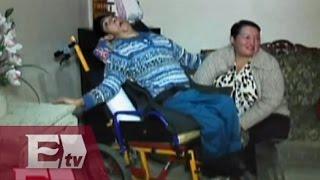 Paciente con parálisis cerebral espera la visita del Papa Francisco