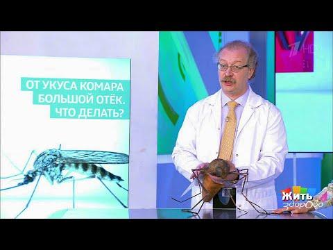 Жить здорово Совет за минуту: отек на месте укуса.(10.07.2018) - DomaVideo.Ru