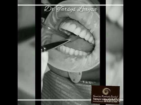 SONRISA PERFECTA DENTAL – TARSYS LOAYZA ROYS   Odontólogo, Odontólogo, Odontólogo, Odontólogo, Odontólogo, Odontólogo