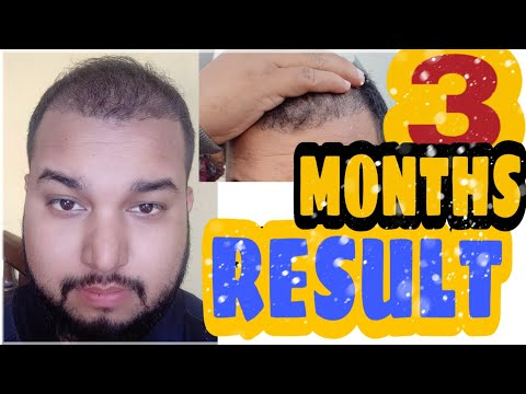 3 MONTHS RESULT || hair transplant in India 2018 || 93 days complete