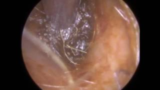 231 - Deep & Dry Blocked Ear Wax Removed off Eardrum using Endoscopic Ear MicrosuctionThe client attended with a blocked ear at my clinic in Leicester, England, UK.They were treated successfully with endoscopic ear microsuction to restore their hearing.