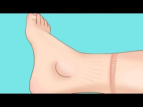 30 SIGNS THAT YOUR BODY IS TRYING TO GIVE YOU - Thời lượng: 14 phút.