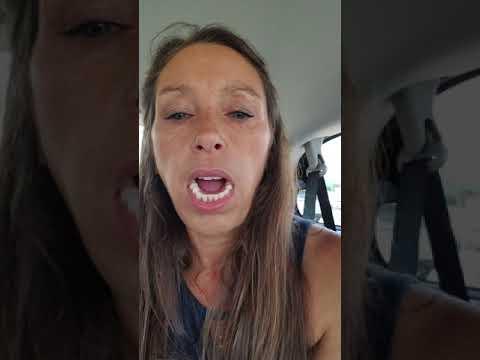 Day 15 Immediate Dentures