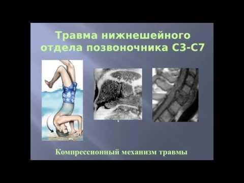 Травма шейного отдела позвоночника, часть 2