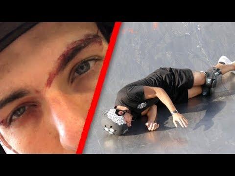 MON PIRE FAIL.. J'AI FAILLI MOURIR !! (видео)