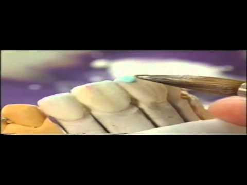 Изготовление керамических виниров на огнеупорной модели