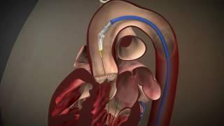 経大腿アプローチ(TF)