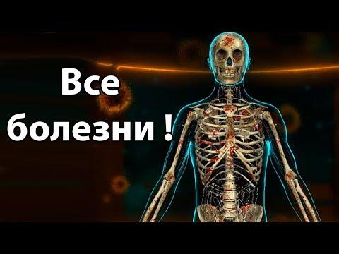 Все болезни в одном человеке ! ( Bio Inc. Redemption ) (видео)
