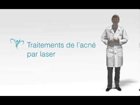 comment traiter l'acné chez l'adulte