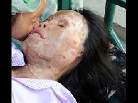Video 10 ACID ATTACKS on Women! download in MP3, 3GP, MP4, WEBM, AVI, FLV January 2017