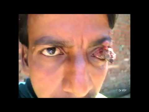 eyeball - Here you can see a worst case of eyeball growth, condition is quite painful present for last 5-6 years. Movements of eyeball are present. Along with this som...